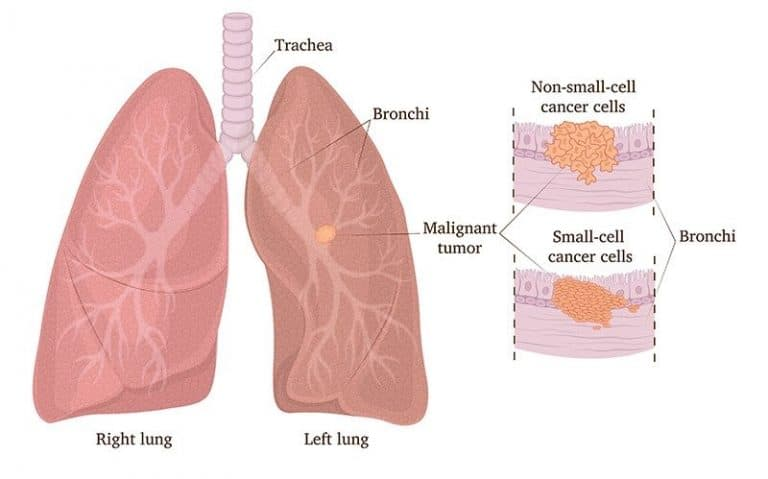 All You Need To Know About Lung Cancer