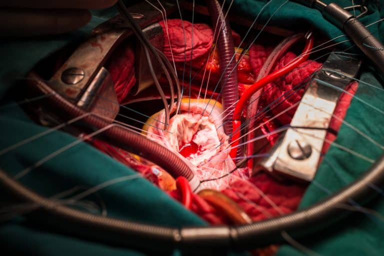 Cardiothoracic Surgery- Everything You Need Know